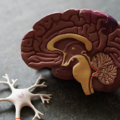 La línea Neurociencias incorpora a Carplex.